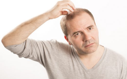 5 Natural Home Remedies For Baldness